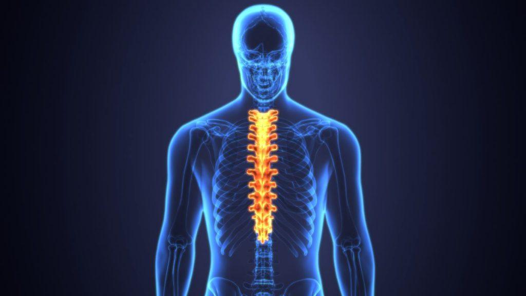 posture Postural Kyphosis