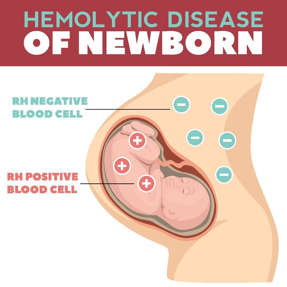 newborns Hemolysis