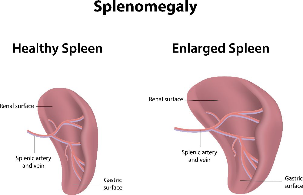 enlarged splenomegaly