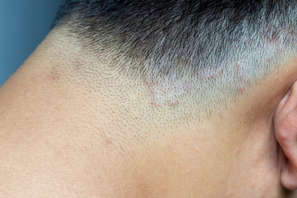 dermatophytes scalp infections