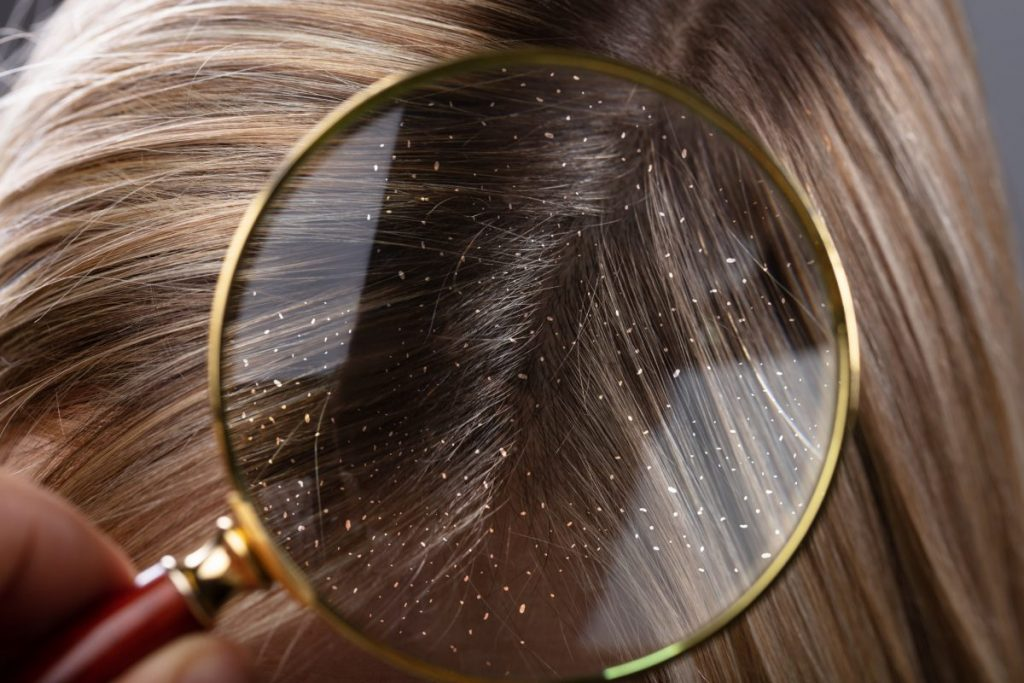 dermatitis scalp infections
