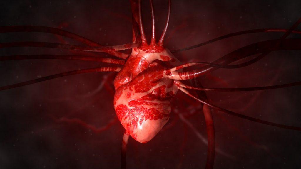 cardio types of shock