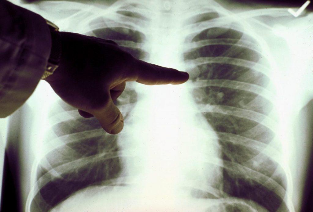 lung Malignant tumors