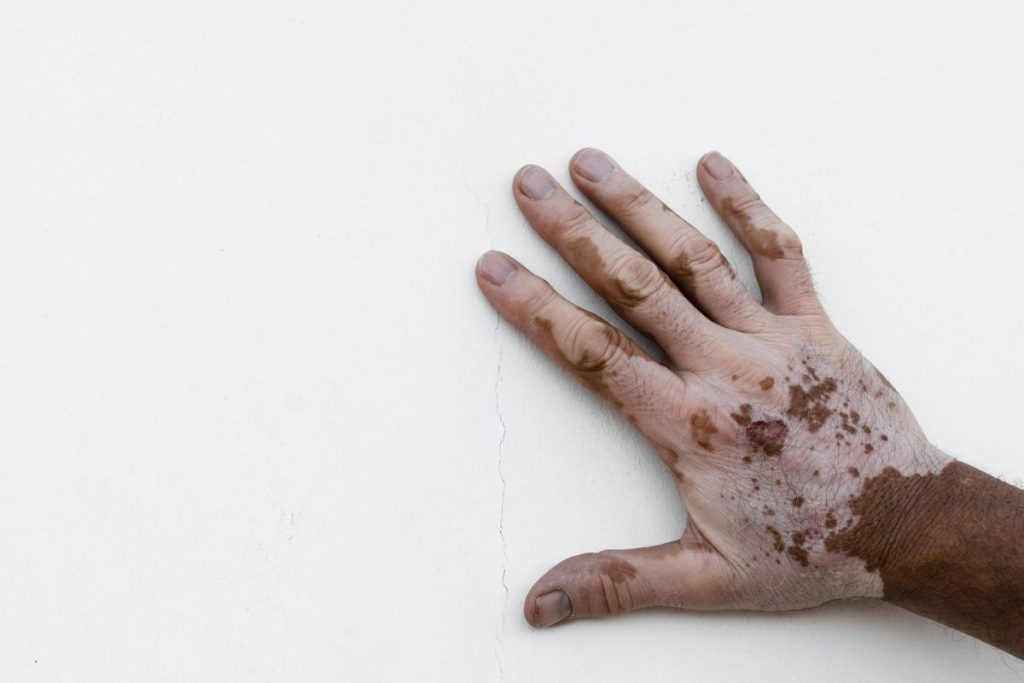 vitiligo white patches on the skin
