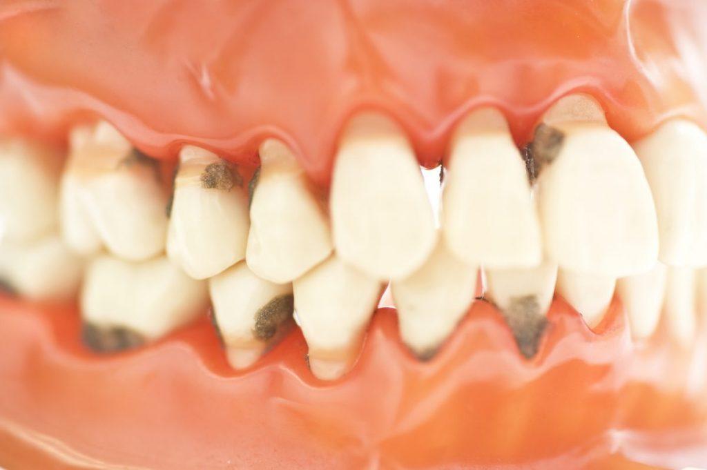 unaligned teeth malocclusion