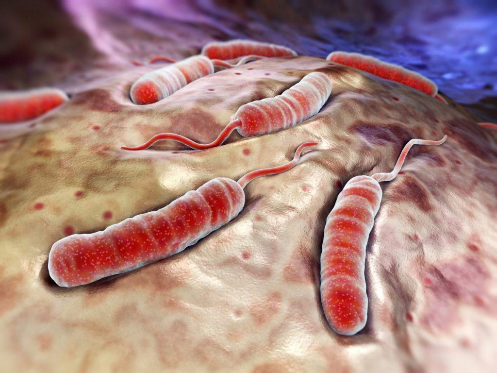 what causes cholera