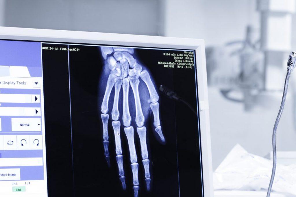 diagnosing Finger dislocation
