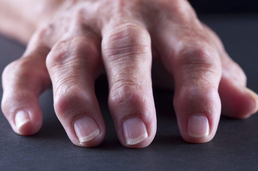 tophi gout arthritis