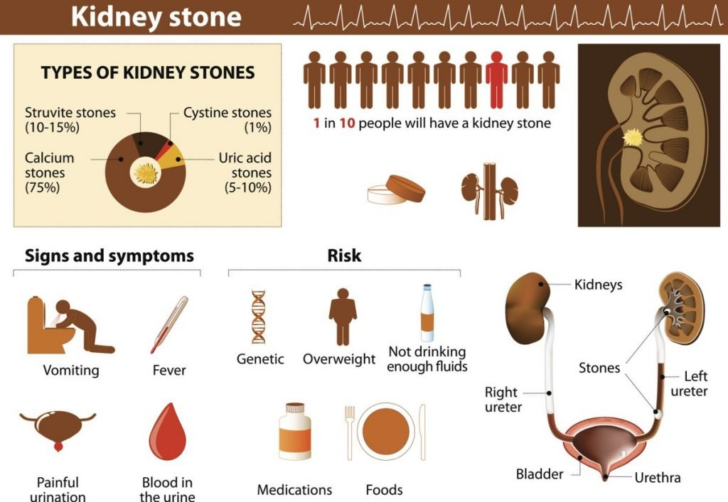 kidney stone ureters