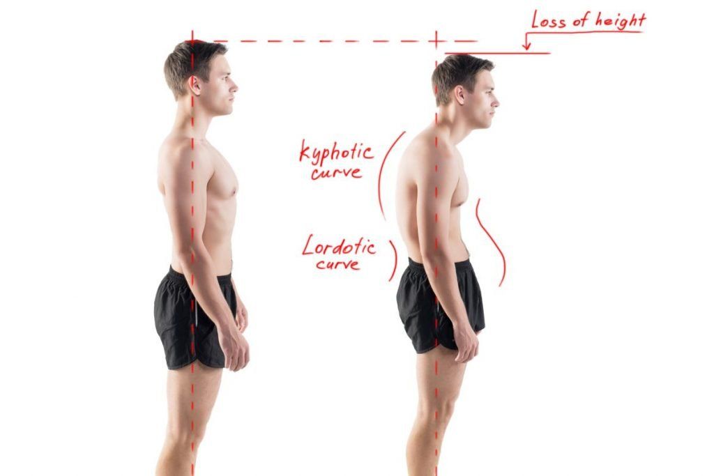 spine Lordosis