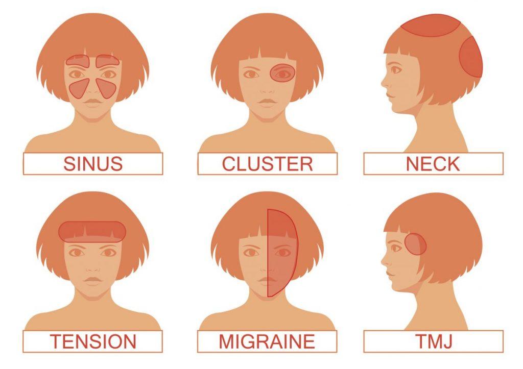 Types of Headaches: Daily Headaches