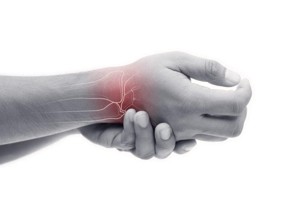 arthritis scaphoid fracture