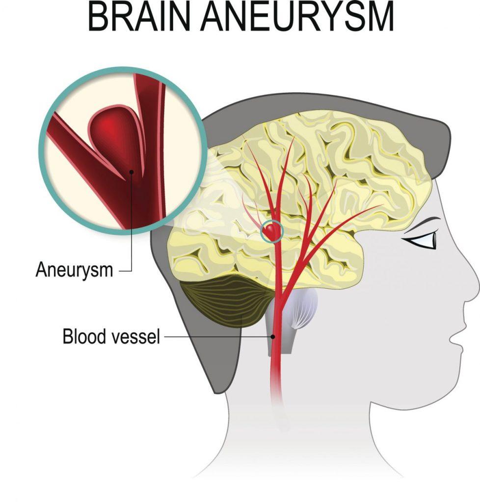 aneurysm Brain pressure