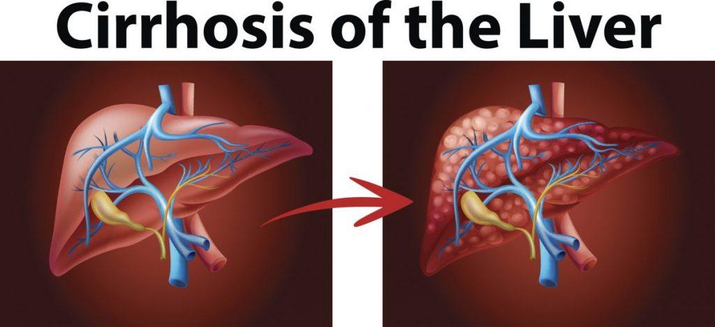 cirrhosis Spleen pain