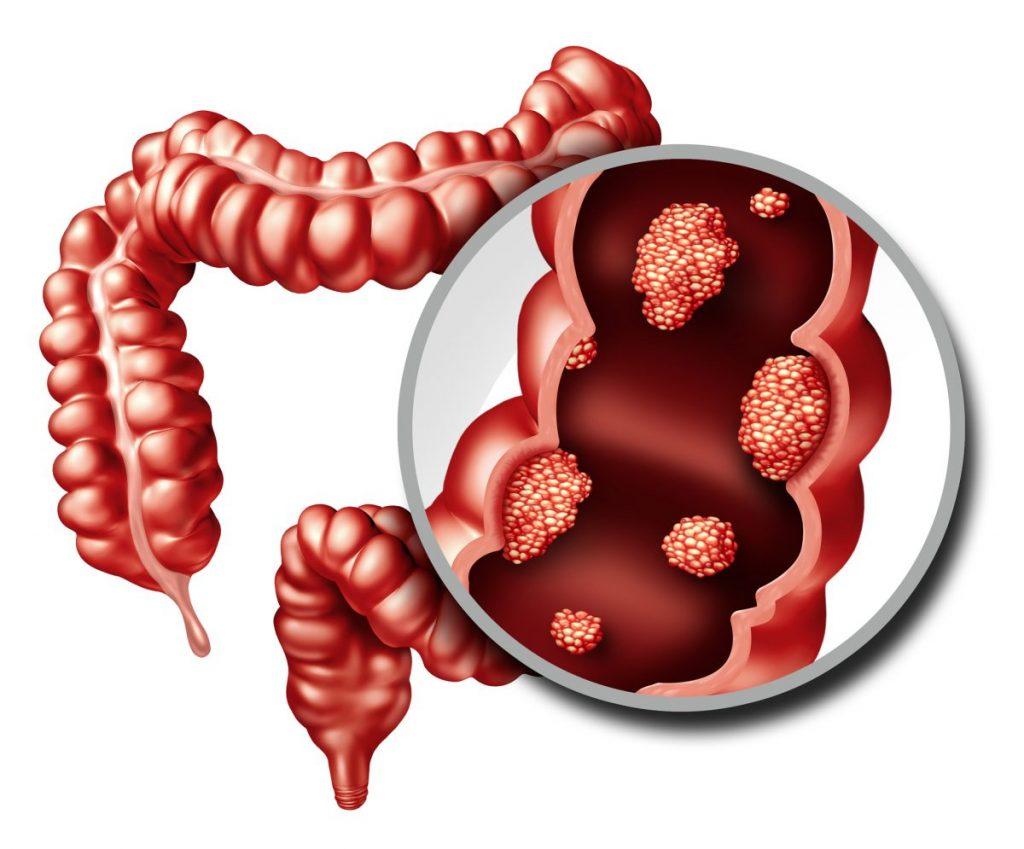 tumors the appendix