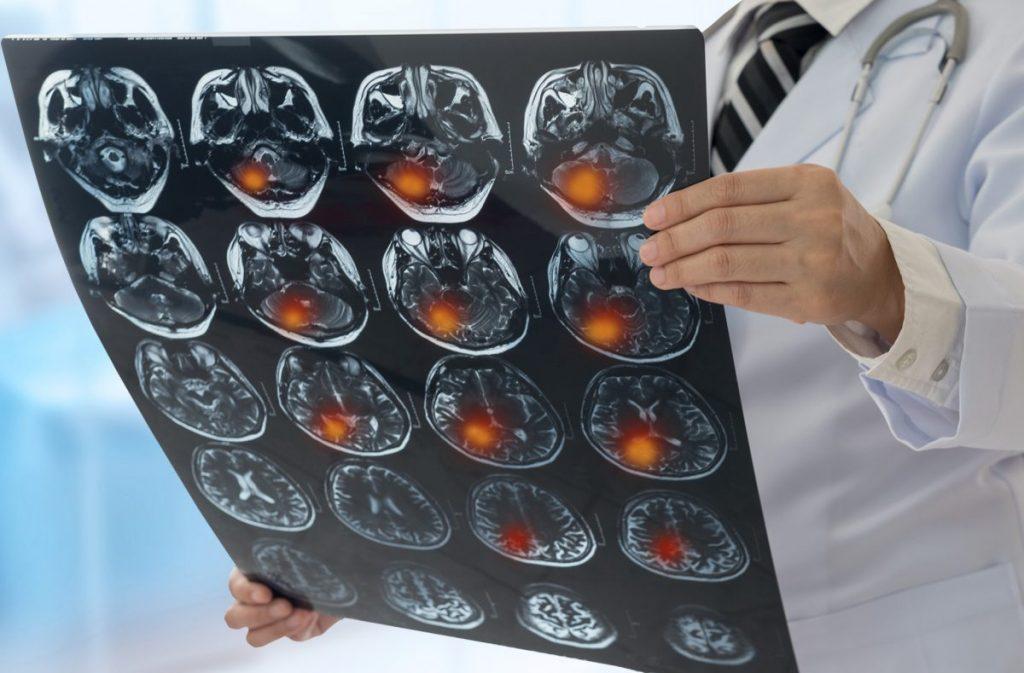 brain ataxia