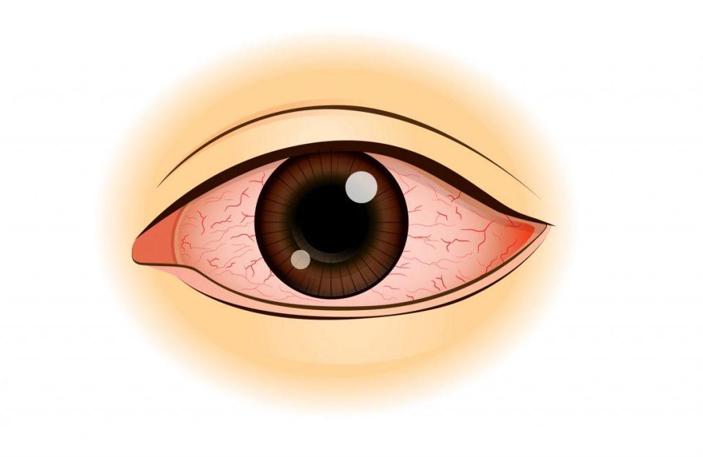 symptoms of corneal ulcer