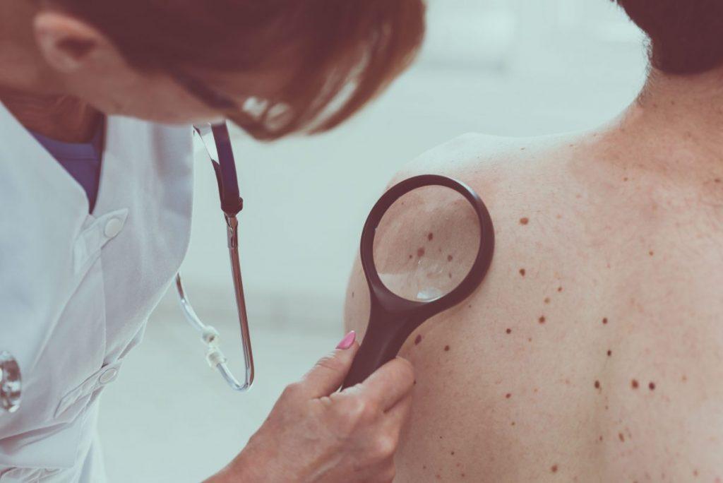 benign tumors skin