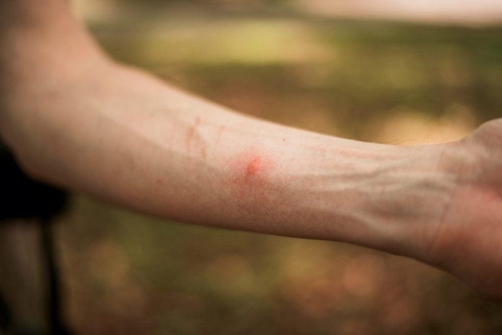 wasp stings pain