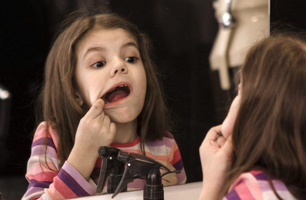 Gingivostomatitis kids