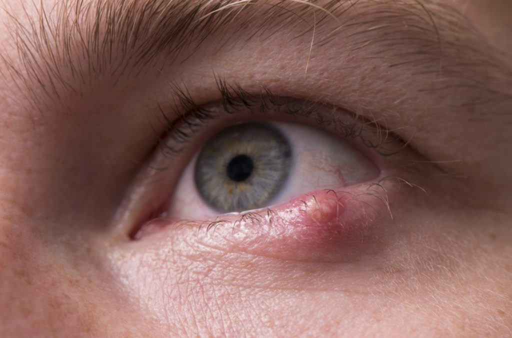 eyes Gingivostomatitis