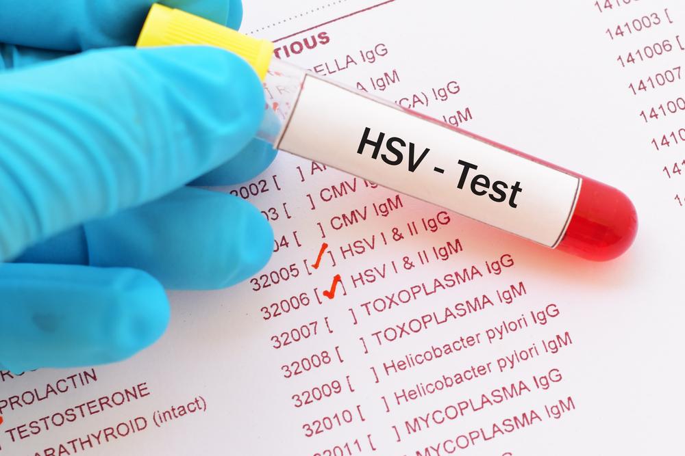 Gingivostomatitis HSV