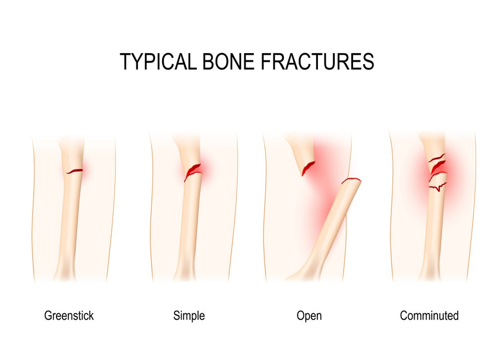 symptoms Comminuted fractures