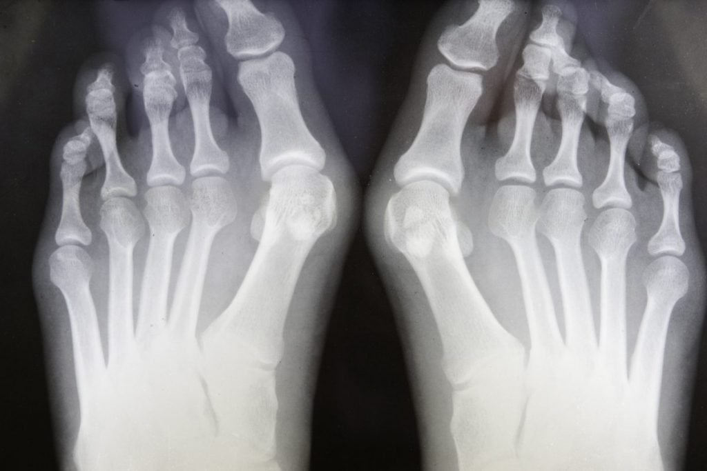 symptoms of bunions