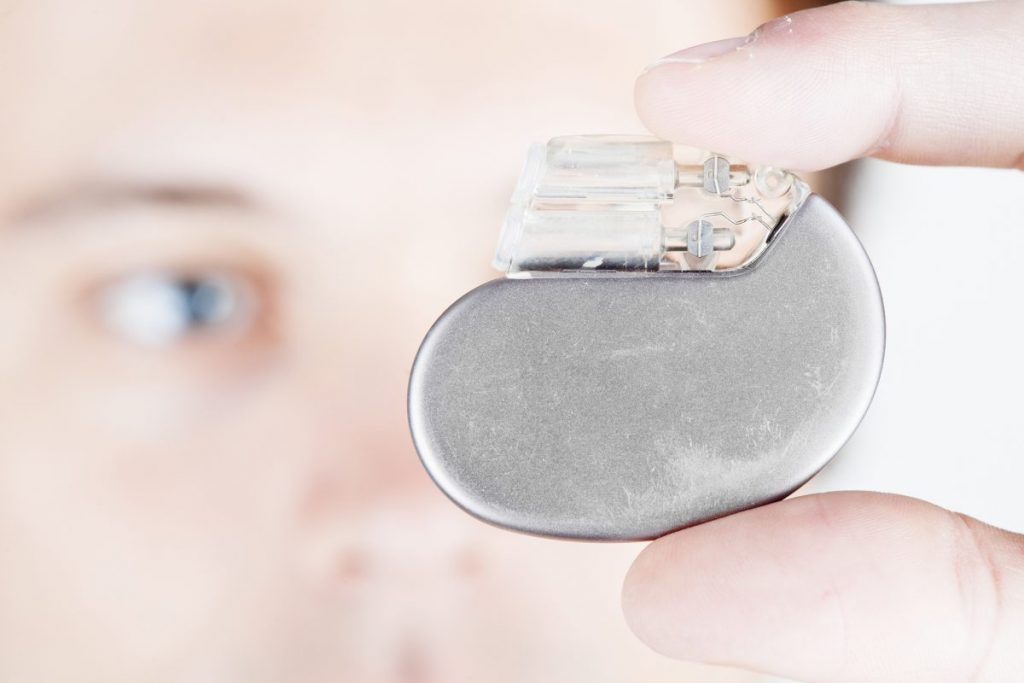 treatment sinus arrhythmia pacemaker