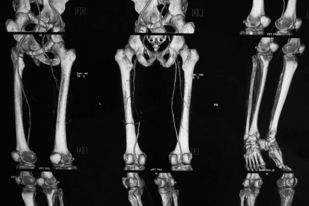 femurs bones