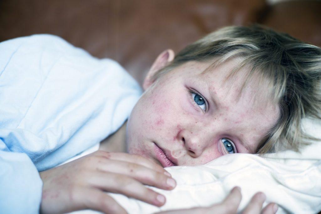 Measles Outbreak Rash