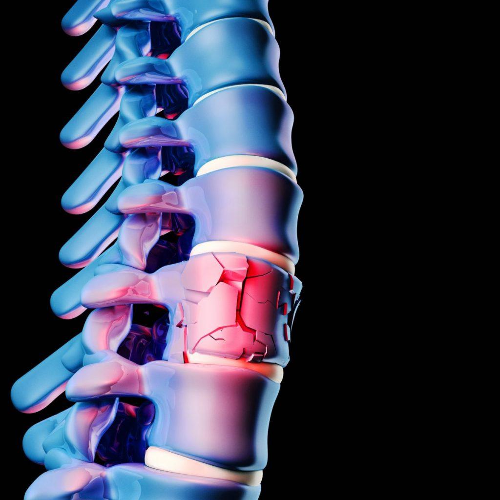 pain sciatica