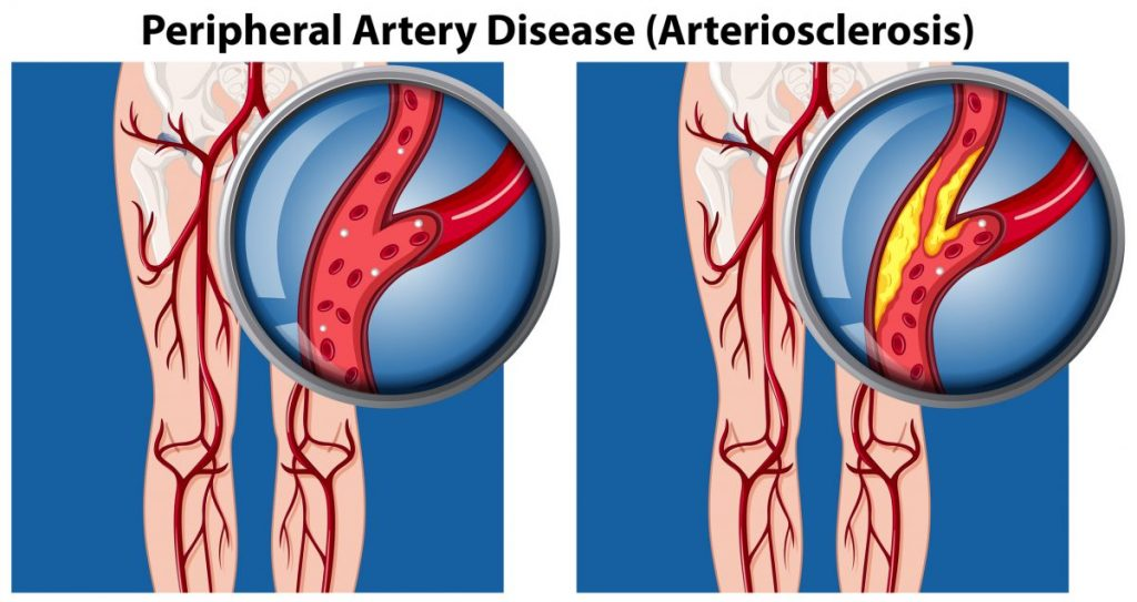arteries artery