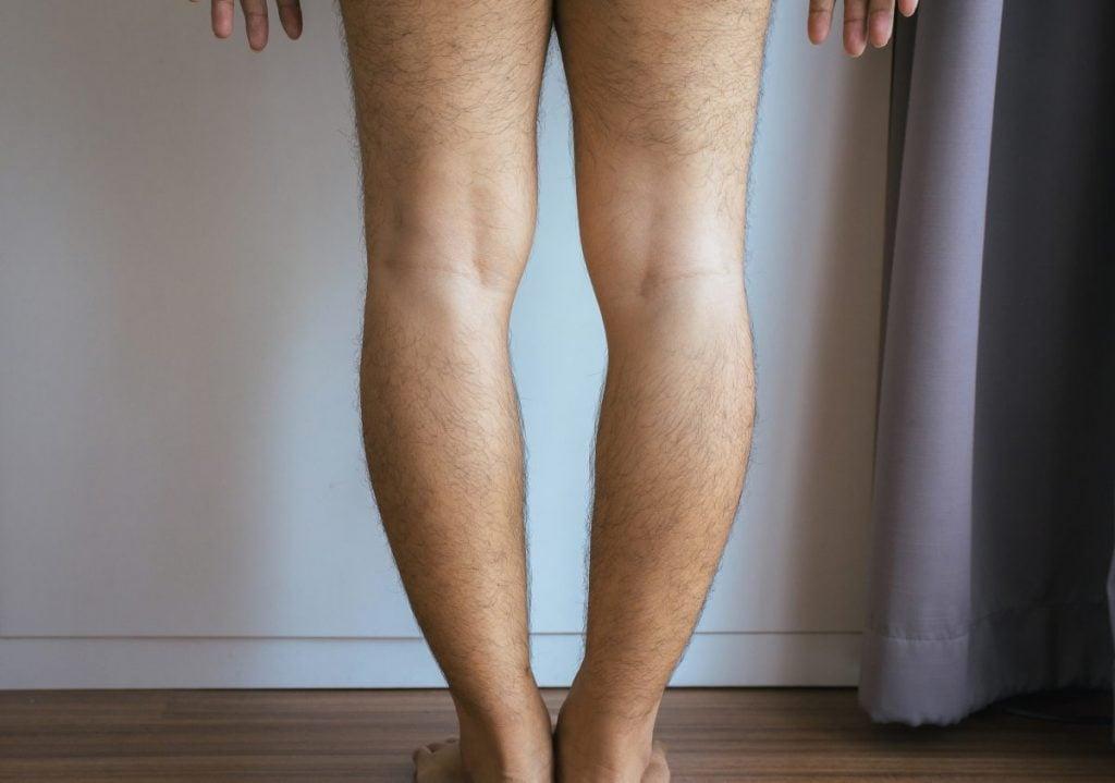 bow legs blount's disease