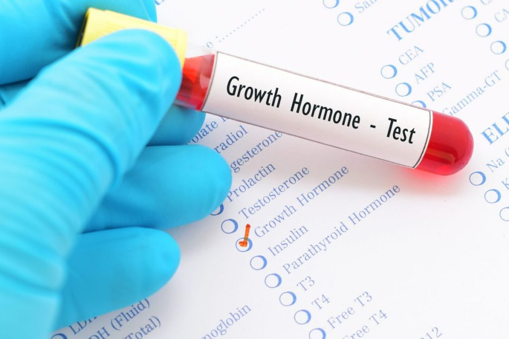 hormone dwarfism