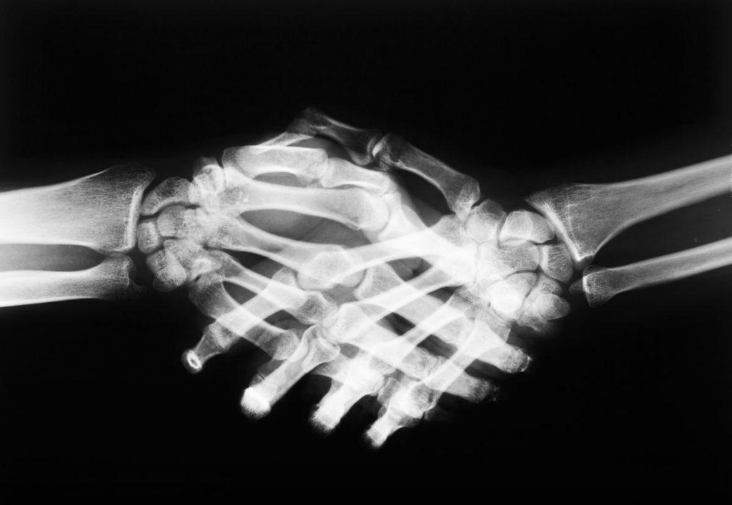 bones bones in the human hand