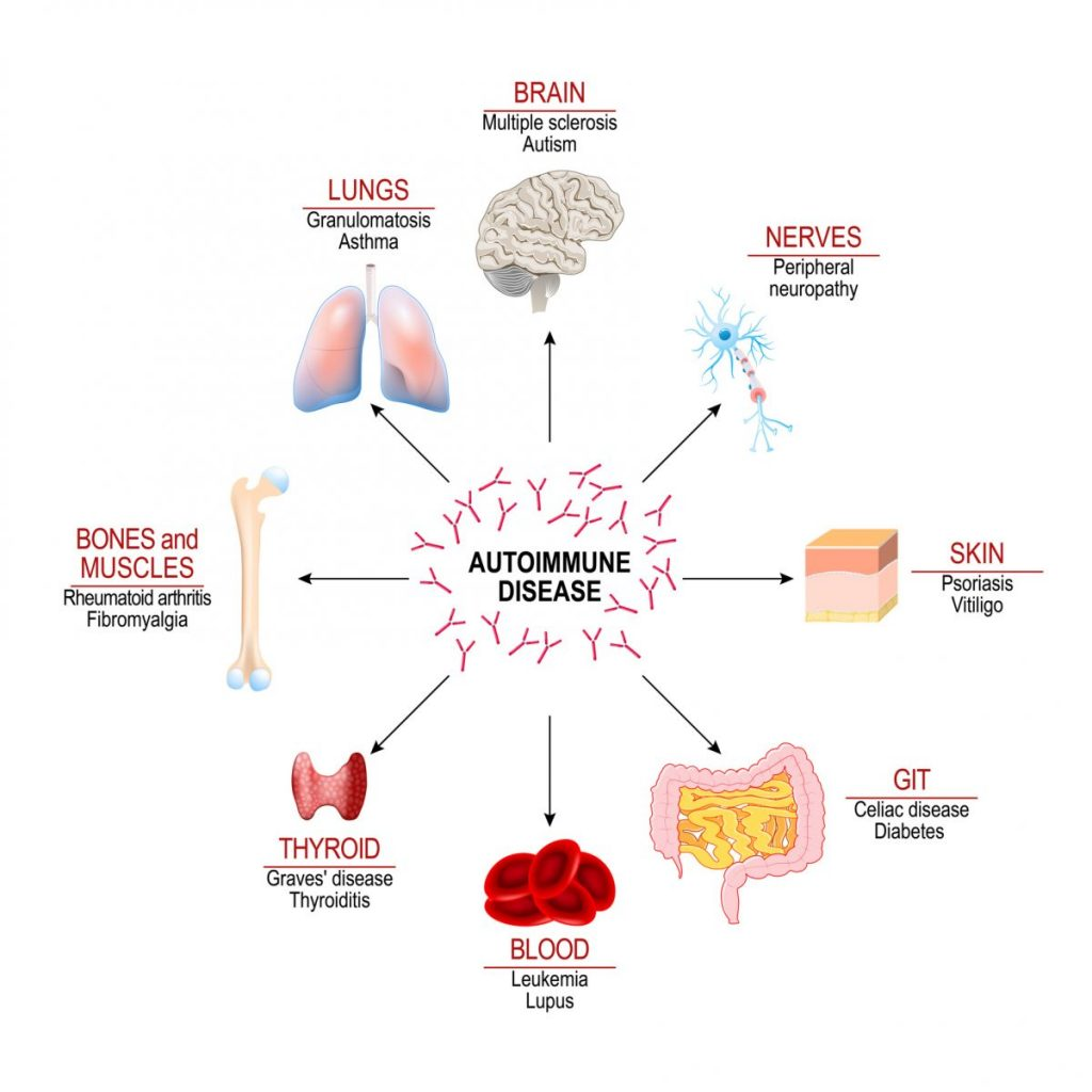 what conditions do corticosteroids
