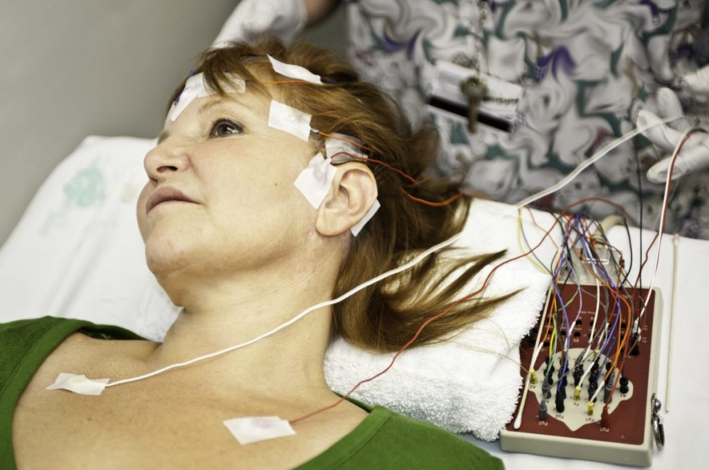 epilepsy seizures