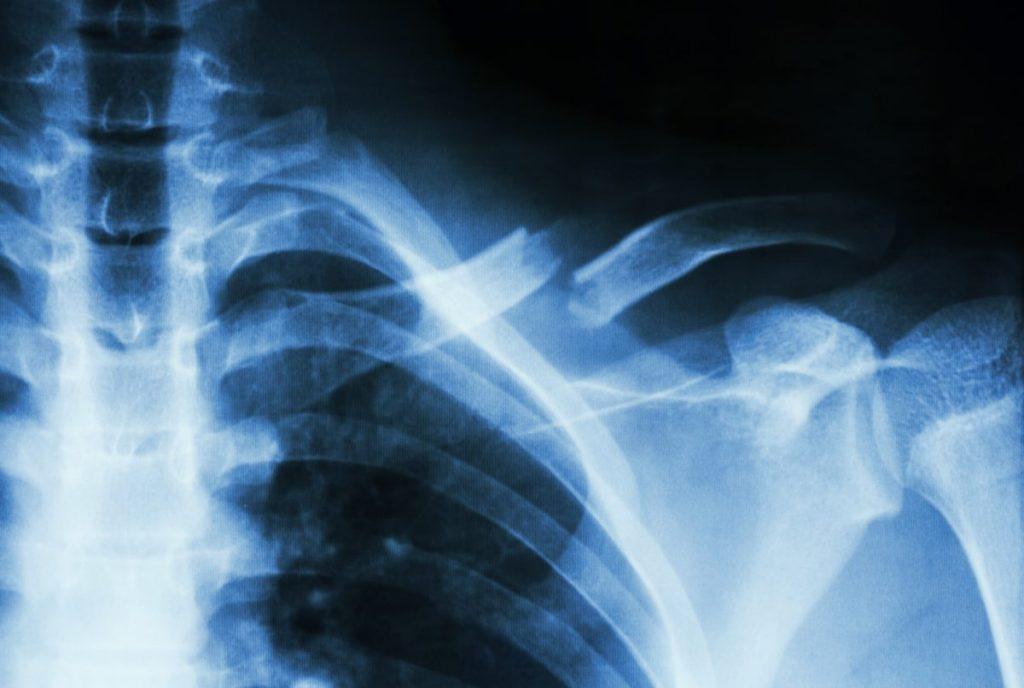 cracked collarbone