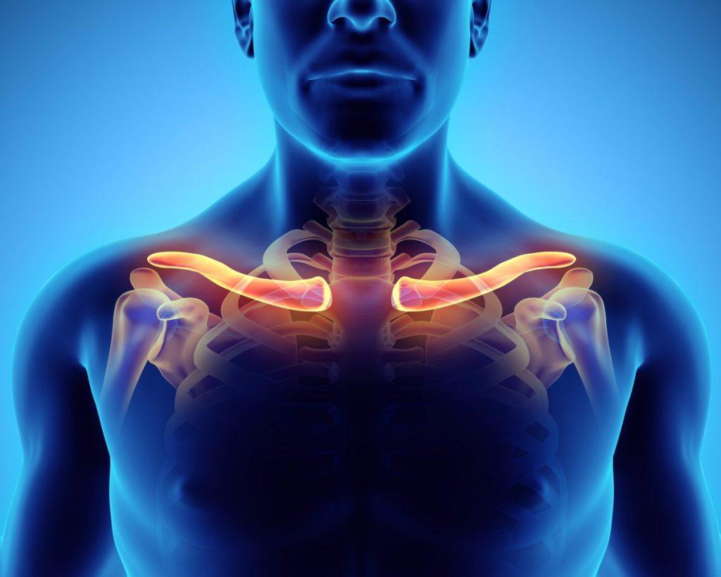 clavicle broken collarbone