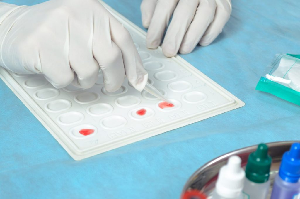 RH Amniocentesis