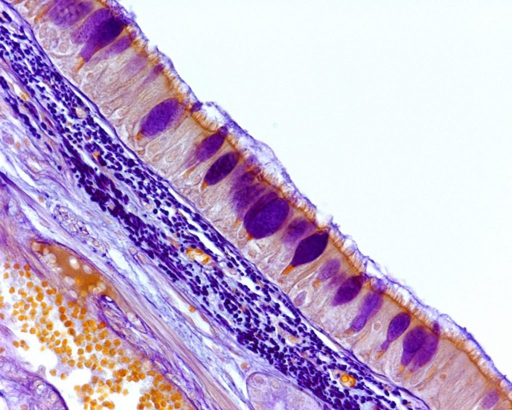 pathogens keratin is