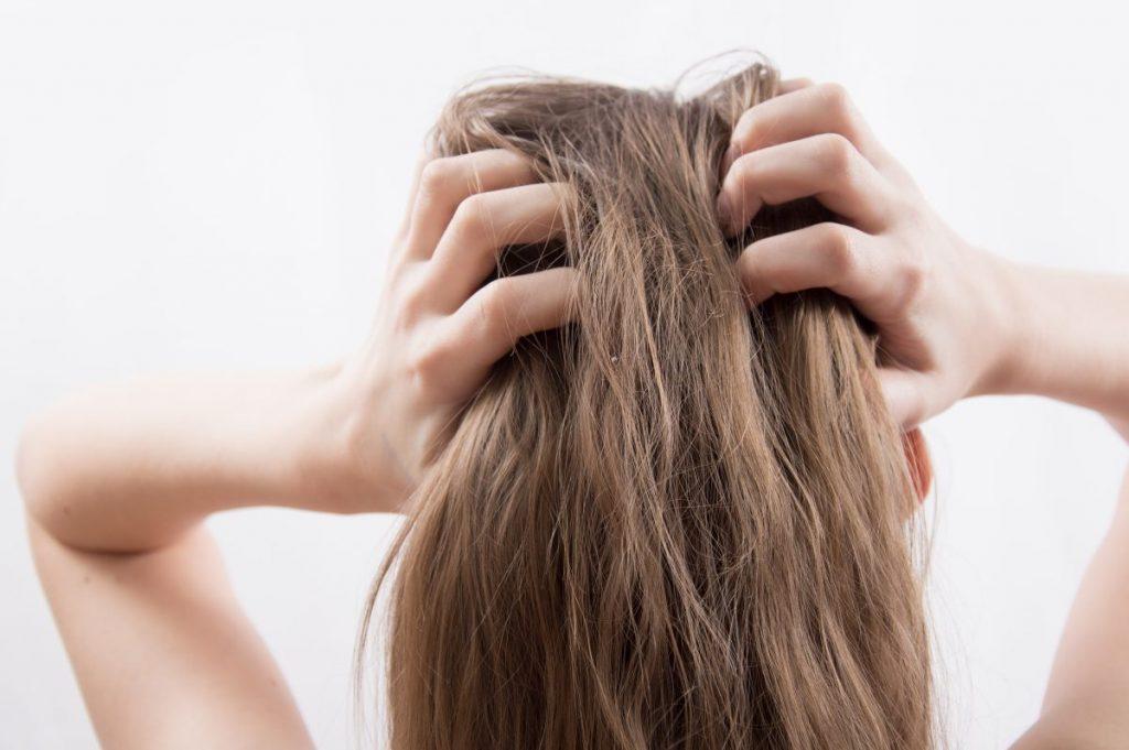 Woman scratching scalp