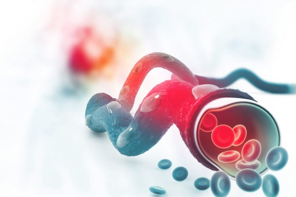 blood embolism