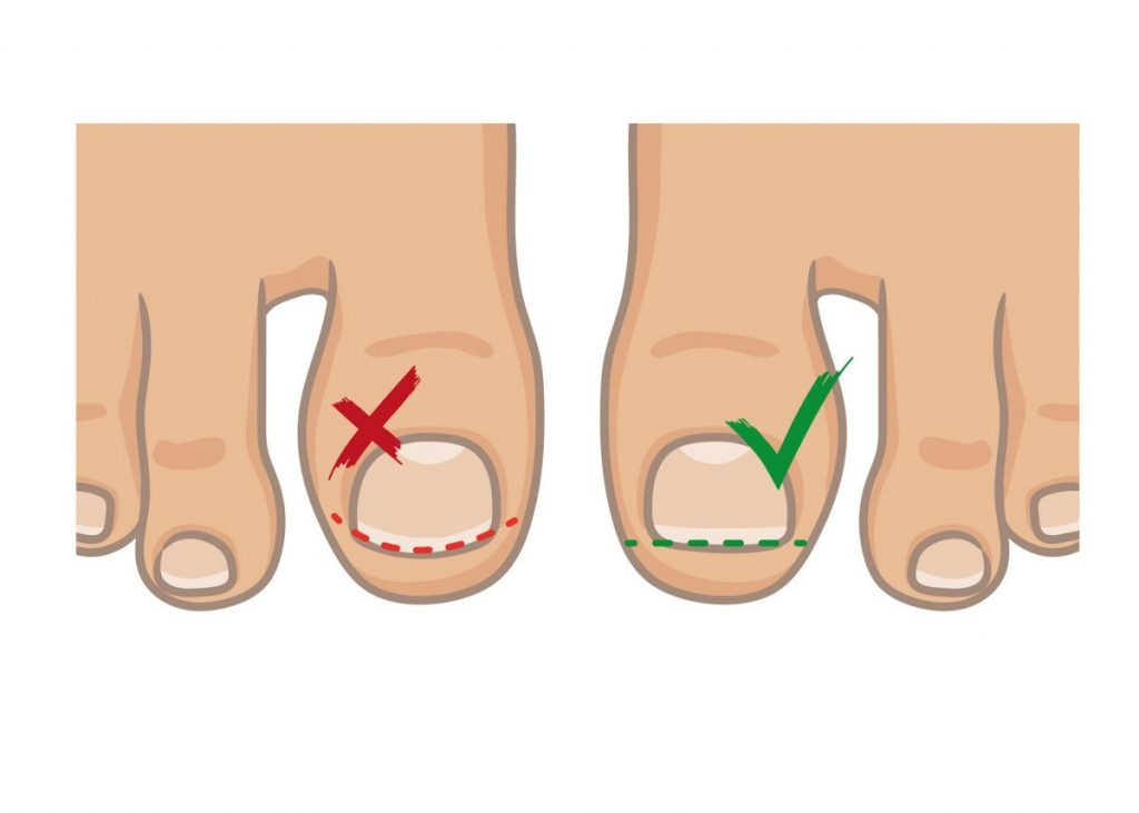 ingrown toenail preventing
