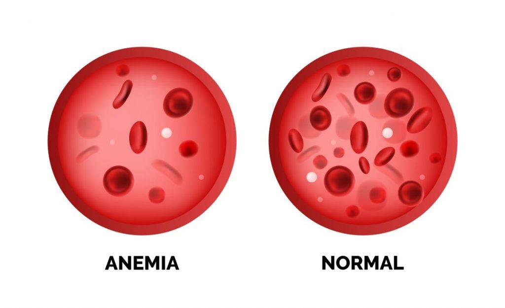 hemoglobin levels levels