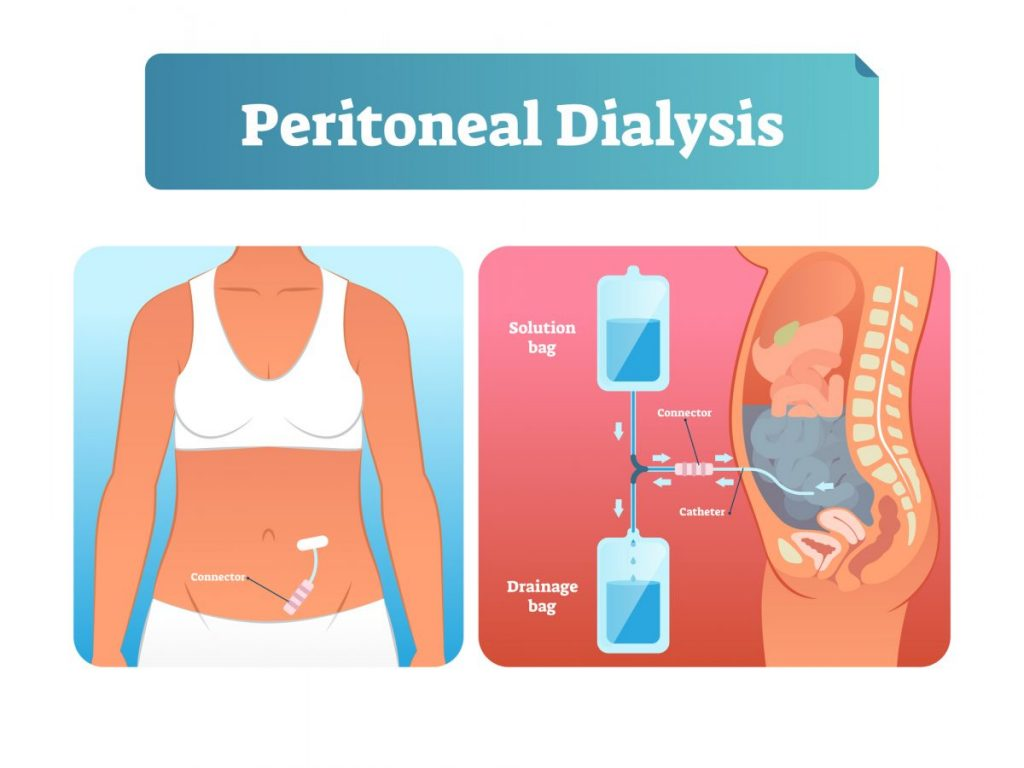 blood dialysis