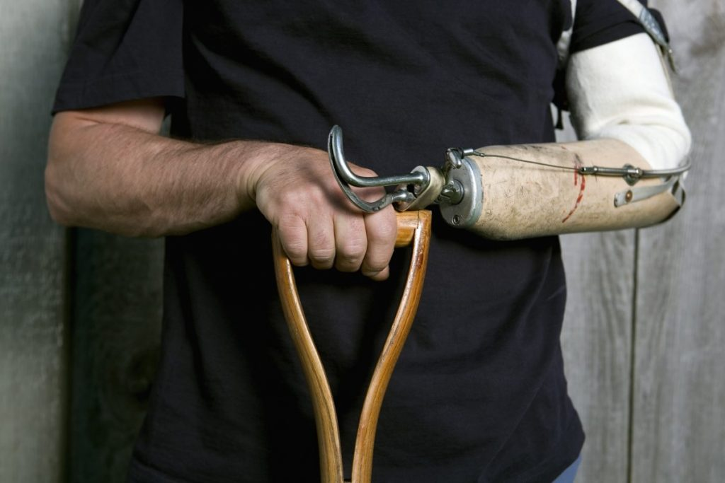 prosthetics body-powered powered