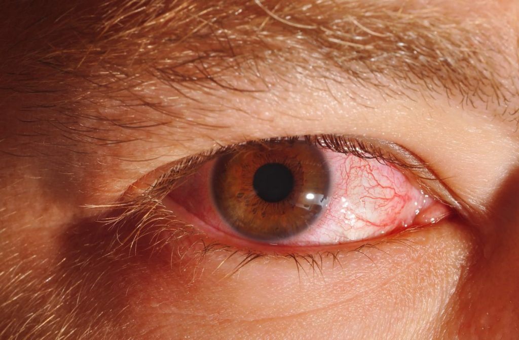 person with pink eye