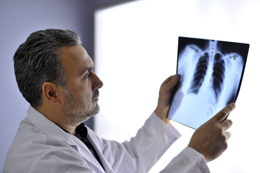 therapy Black lung disease